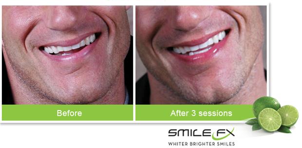 SmileFX - Bet you didn't know we did teeth whitening